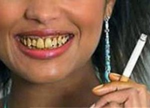 Perawatan Gigi Perokok